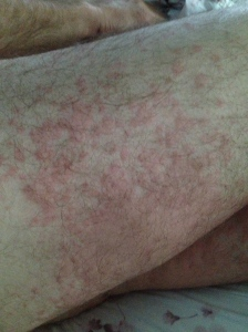 "Ant bite welts on my legs. Not a pretty site. But . . . ""you should have seen the other guy!"" Ha!"